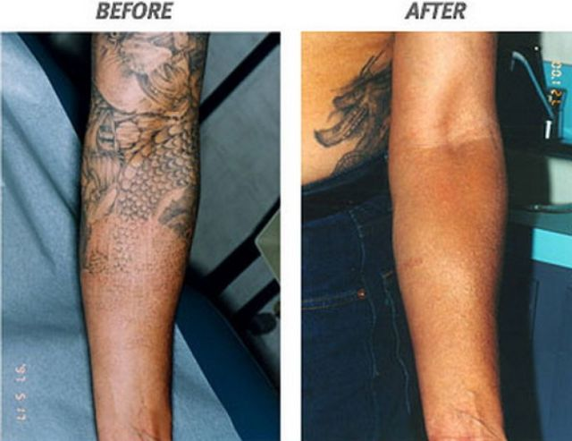 The Risk Of Having Tattoo Laser Removal In Arm ...