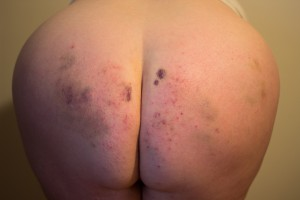 I couldn't find an image that conveyed 'pain slut', so you get an old picture of my bruised ass. =D