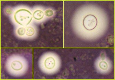 various capsule sizes of Cryptococcus neoformans