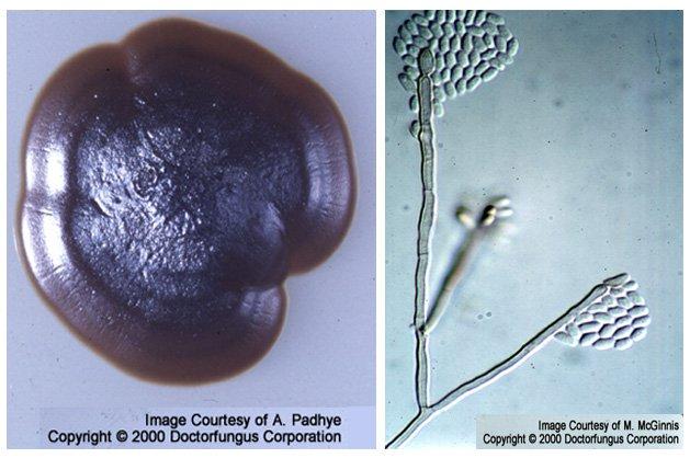 Wangiella (a.k.a. Exophiala) dermatitidis