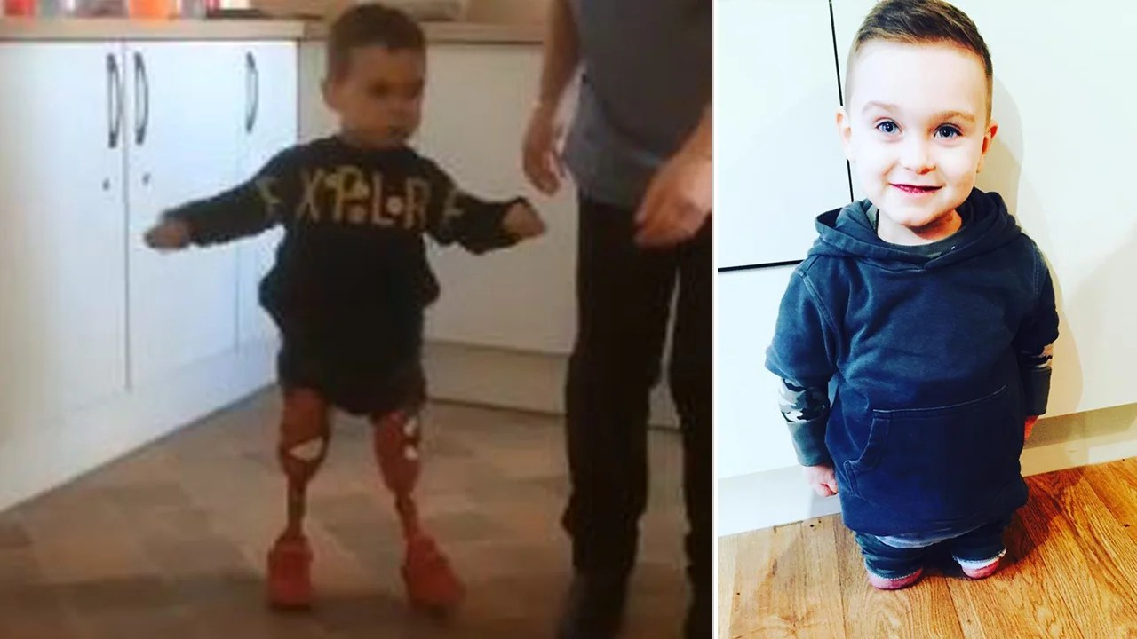 3 Year Old Amputee Takes First Steps By Himself On Prosthetic Legs Inside Edition