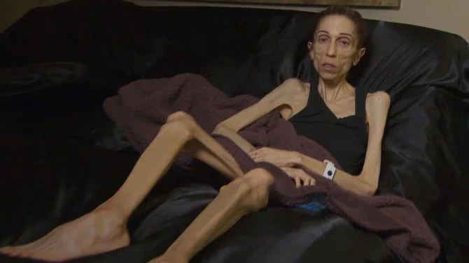 Anorexic Actress Who Weighs 40 Pounds Raises 200K To Fight Her Eating Disorder Inside Edition