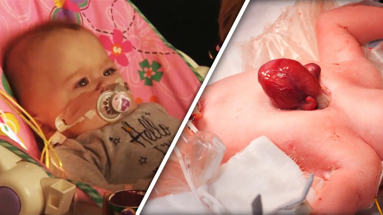 Baby Born With Heart Outside Of Chest Allowed To Go Home Inside Edition