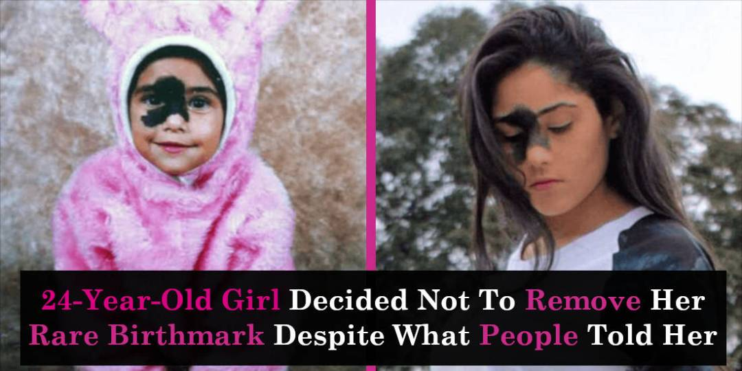 24-Year-Old Girl Decided Not To Remove Her Rare Birthmark Despite What People Told Her