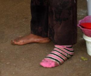 Feet of the forgotten