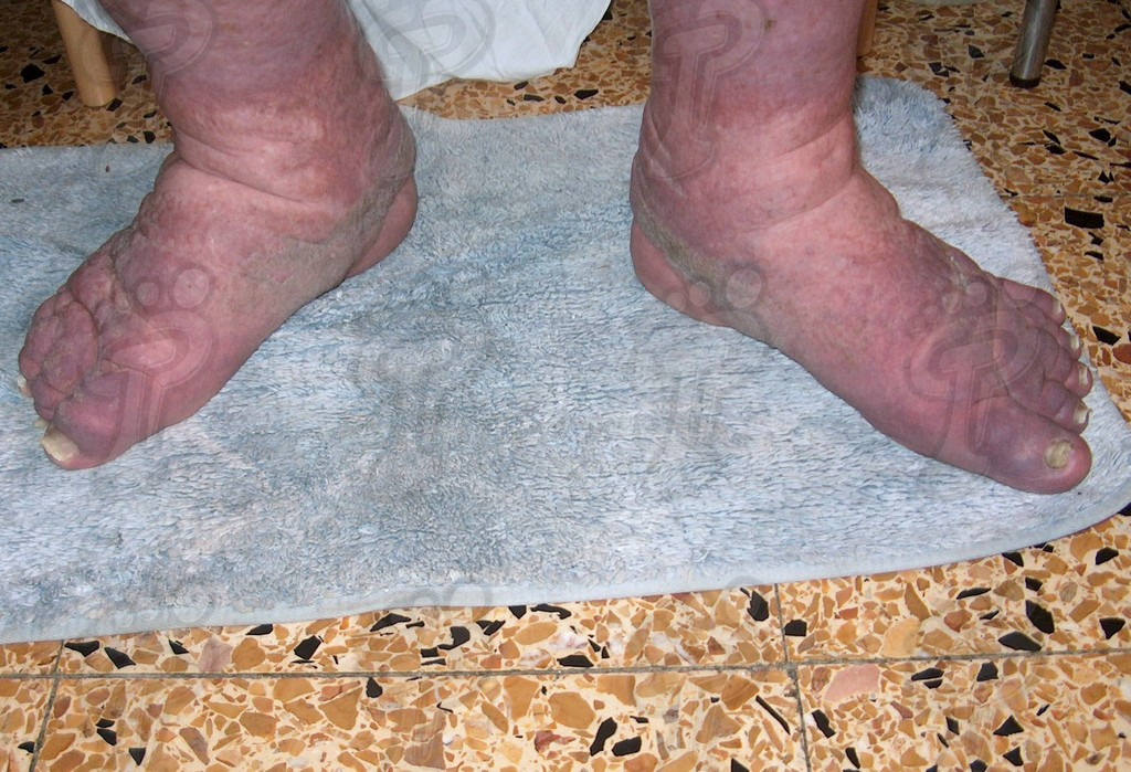 Elephantiasis or Chronic lymphatic filariasis