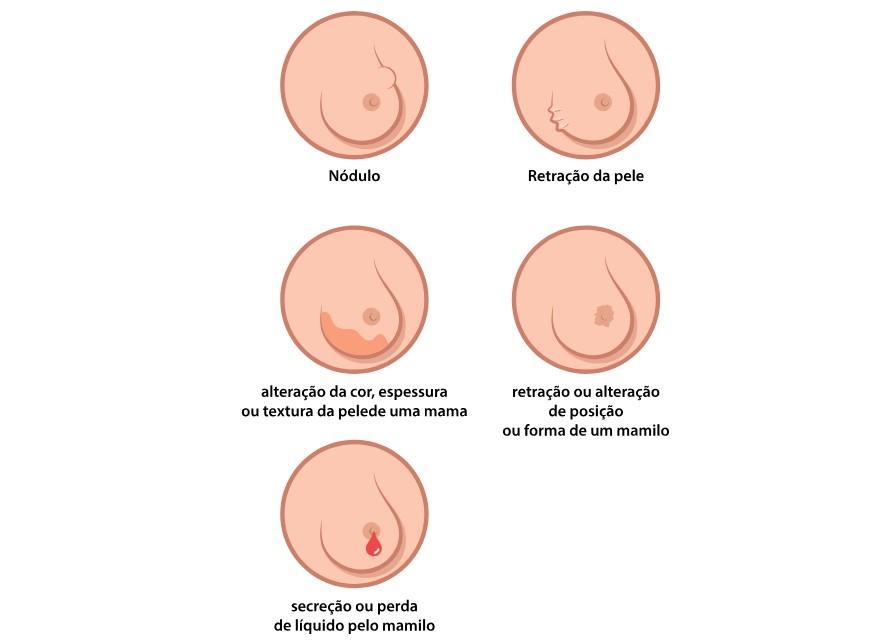 Detecção do câncer de mama