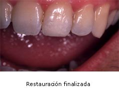 odontopediatria03