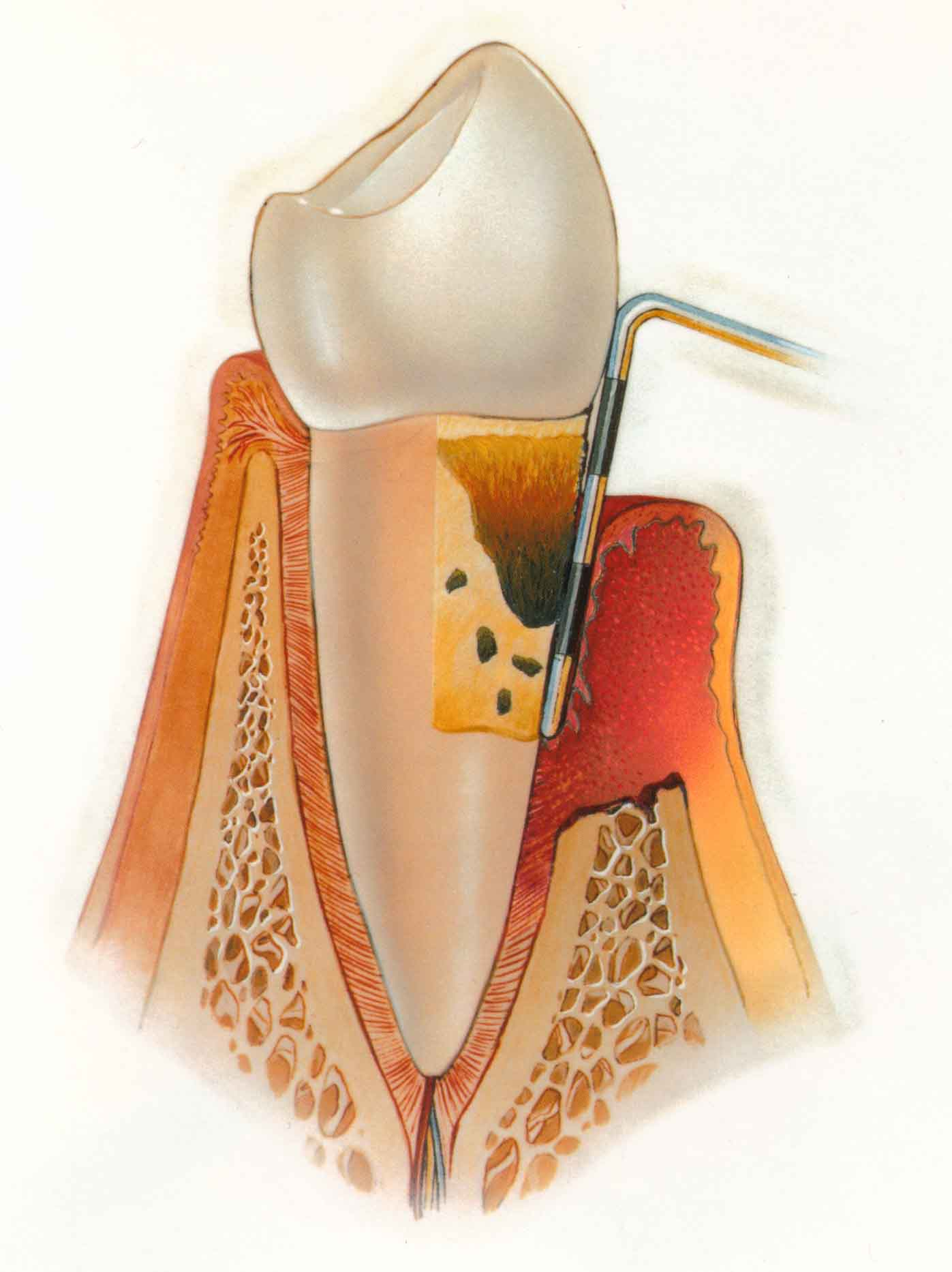 Reasons To Do A Gingival Flap Surgery Intelligent Dental
