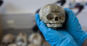 Dissected-Fetal-Skull