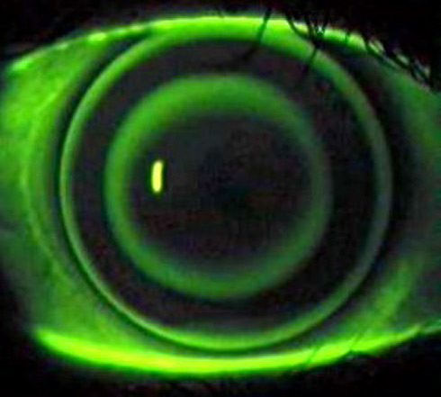 nightvisioncontact Night Vision Contact Lenses?