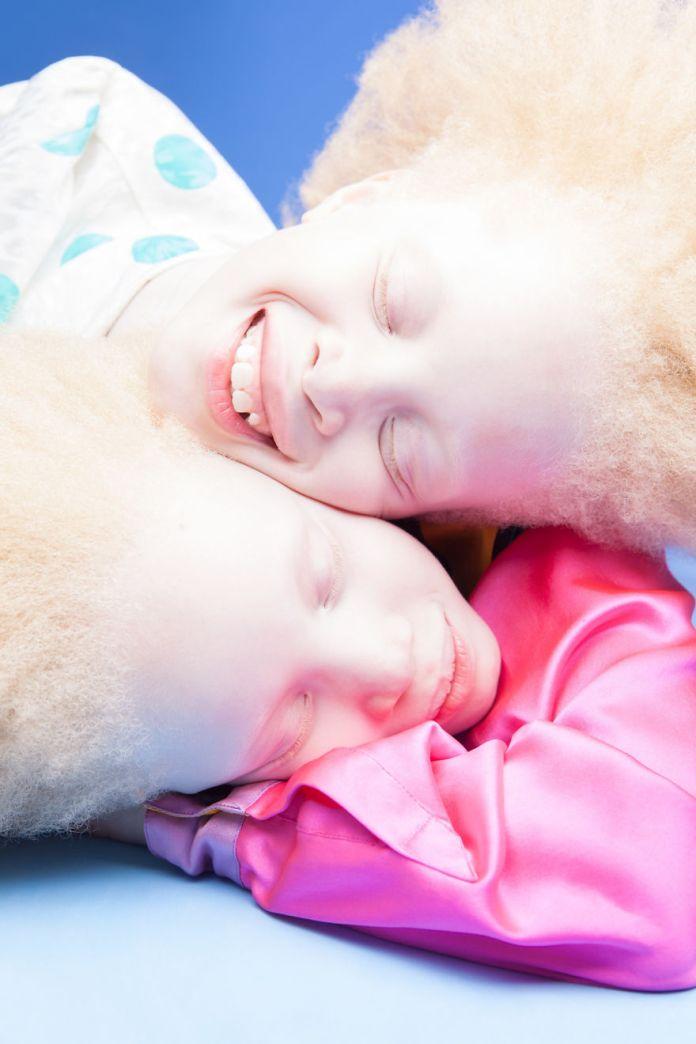 albino-twins-models