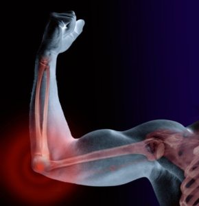 Man flexing bicep, skeleton visible, close-up (Digital Composite)