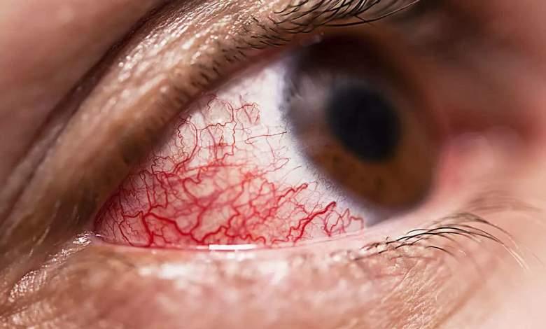 eye agencies