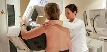 mammografia mammella seno cancro