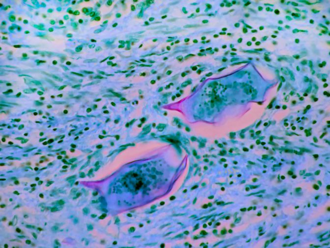 Schistosoma mansoni eggs in colon tissue where they spend part of their life cycle. Magnification 400X.
