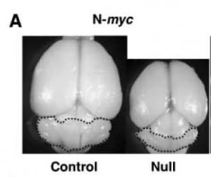 N-Myc