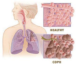 stem cells for COPD?