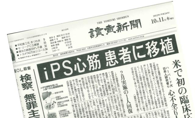 iPS cells transplant headline