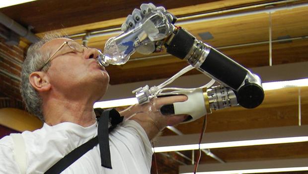 Bionic arm deka