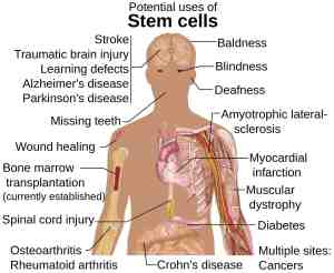 stem cell treatments
