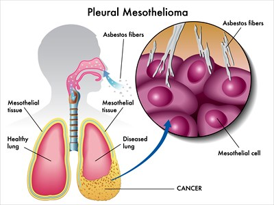 mesothelioma, cancer, diagnosis, asbestos exposure, asbestos, asbestos companies, cancer victims, mesothelioma patients, mesothelioma attorney, mesothelioma lawyer