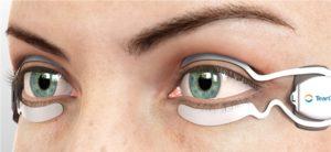 TearCare Open Eye