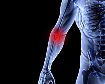 ITEC Sports Injuries Course by distance learning.