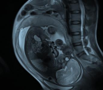 pregnant graphic