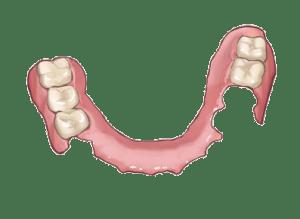 denture(1)