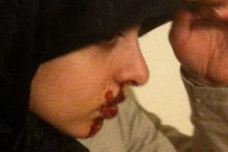 Gadis Iran Diserang Karena Berjilbab