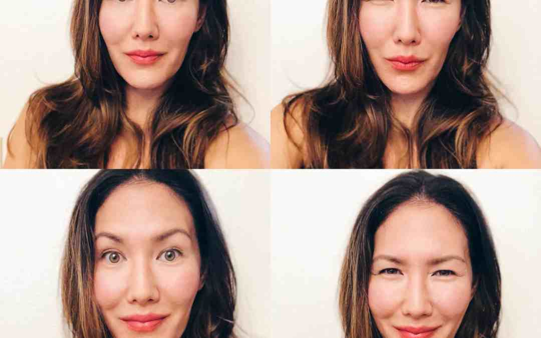 HERE'S WHAT REALLY HAPPENED AFTER GETTING BOTOX FOR THE FIRST TIME…