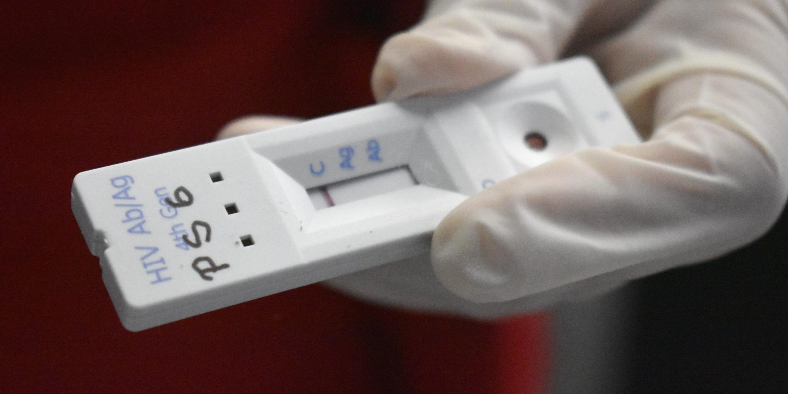 Chile: Aumento de tests positivos de VIH subió a un 5.6%