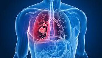 Tumore polmone: immunoterapia più efficace senza antibiotici