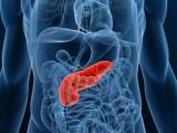 Cancro al pancreas