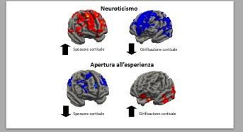 'Human Connectome Project': dimmi che forma ha il tuo cervello e ti dirò chi sei