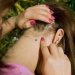 Cum recunoastem si tratam muscatura de capusa