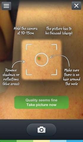 25560623 084516  SkinVision..แอพสแกนผิวหนังเช็คมะเร็งผิวหนัง และแสงยูวี..ตัวการร้ายทำลายผิว