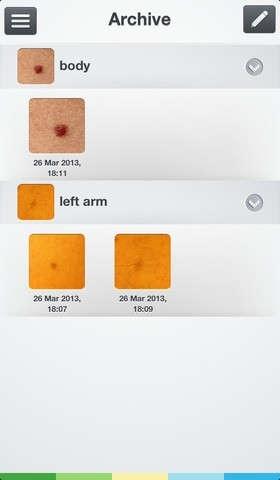 25560623 084545  SkinVision..แอพสแกนผิวหนังเช็คมะเร็งผิวหนัง และแสงยูวี..ตัวการร้ายทำลายผิว