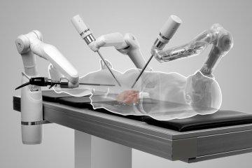 หุ่นยนต์ผ่าตัด แผลเล็กแม่นยำ แพทย์ควบคุมจากทางไกล