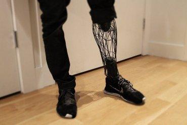 ขาเทียมไททาเนียม โดยการพิมพ์ 3 มิติ แข็งแรง เบา สวยงาม 19 - 3D