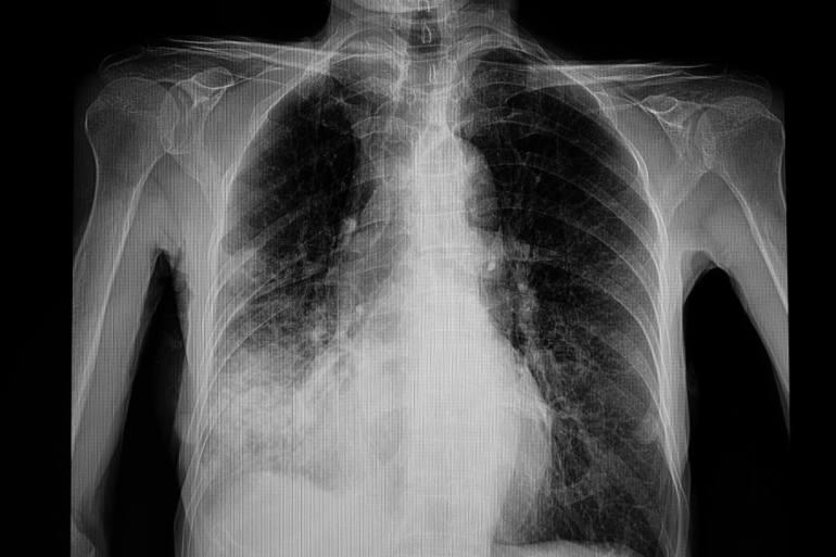 """แพทย์รามาแนะวิธีป้องกัน """"ปอดบวม"""" โรคยอดฮิตที่มาพร้อมลมหนาว 15 - pneumonia"""