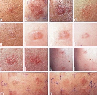 Image Result For Copper Allergy Patch Test