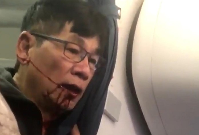 dr dao united airlines settlement jackfroot