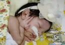Criança jacobinense com doença congênita precisa de ajuda fazer tratamento