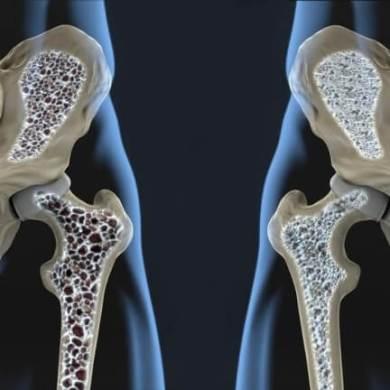 Understanding Osteoporosis Risks Treatment Home Care Services
