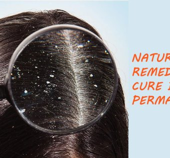 natural home remedy for dandruff