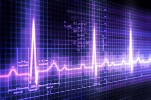 Acupuncture improves cardiac coherence