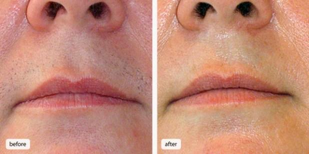 تجارب ازالة شعر الوجه بالليزر