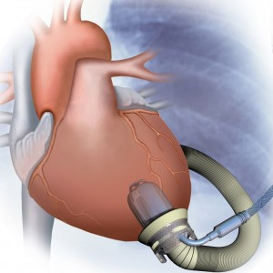 Jarvik 2000 VAD - in Heart